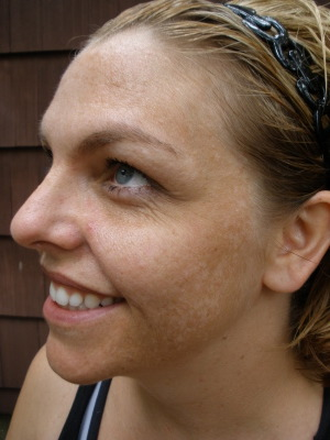 Top Tips for Preventing and Treating Melasma - Skin Inc